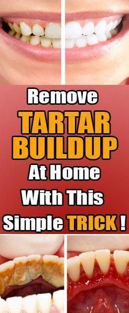 Remove Tartar Buildup At Home  This Simple Trick