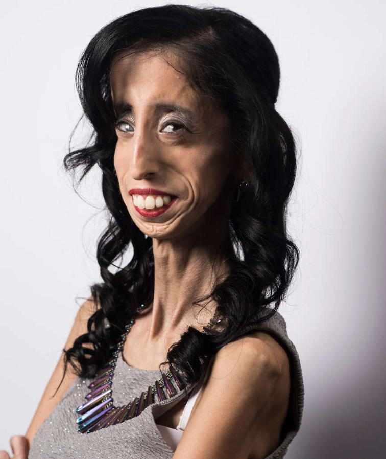 Frau foto hässliche Sex mit