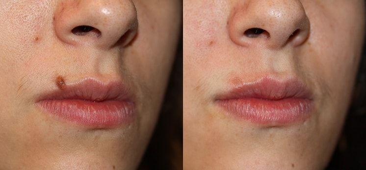 Mole Removal In Dubai Mole Removal Laser Skin Care Laser Mole Removal