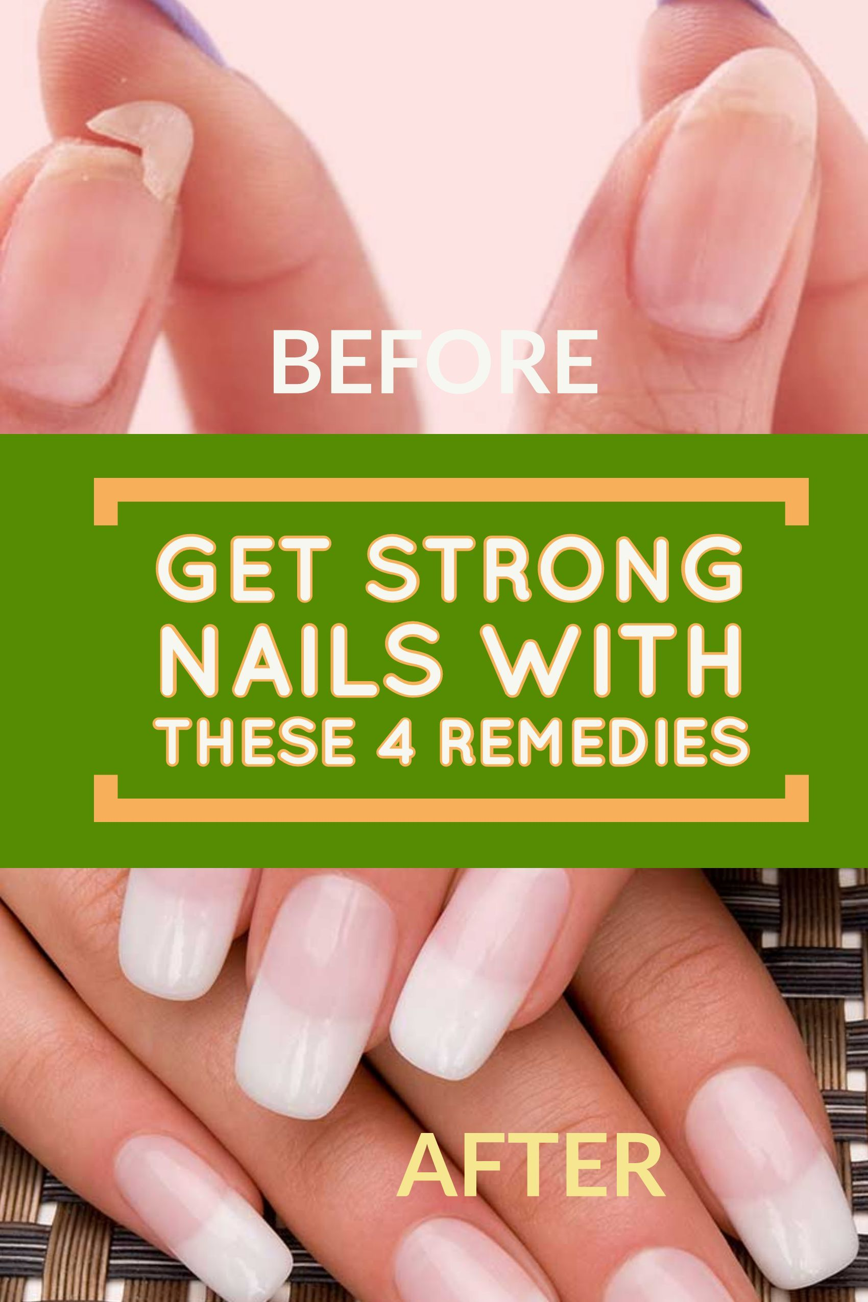 Fragile fingernails? Strengthen them with these 4 natural remedies ...
