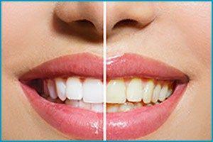 Understand The Two Types #TeethWhitening Treatments #BostonDentist #BraintreeDentist #GreatHillDental