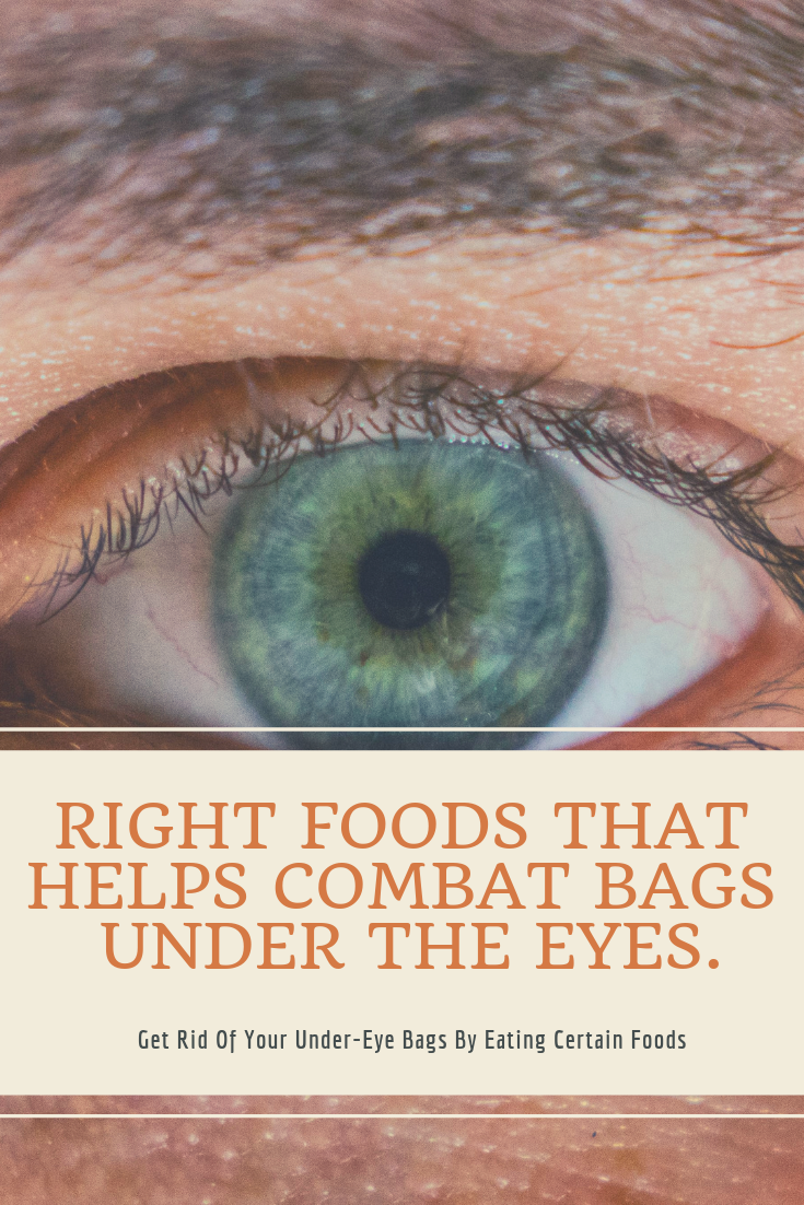 How You Might Be Able To Get Rid Of Your Under-Eye Bags By ...