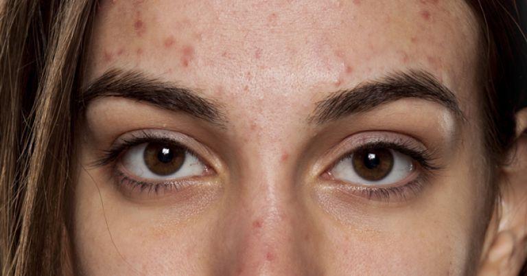 Como Secar Espinhas E Eliminar Manchas Com Babosa Dermatologista