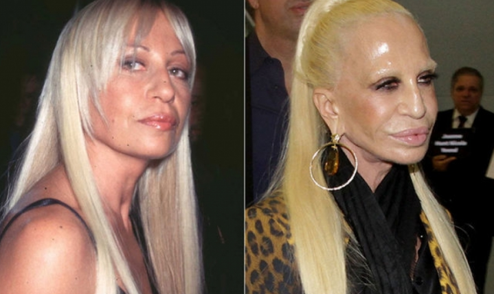 Image result for Donatella Versace before after