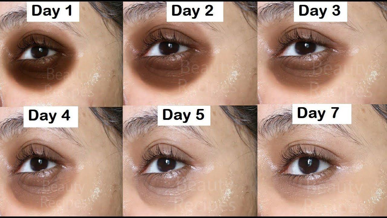Remove Dark Circles In 7 Days Under Eye Wrinkles Eye Bags Anti