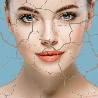 Wenns Spannt Und Schuppt Das Sos Programm Für Trockene Haut