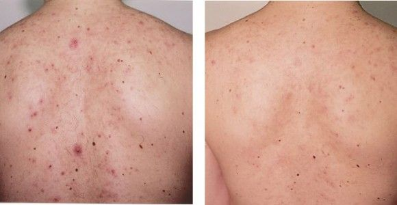 back acne scars treatment