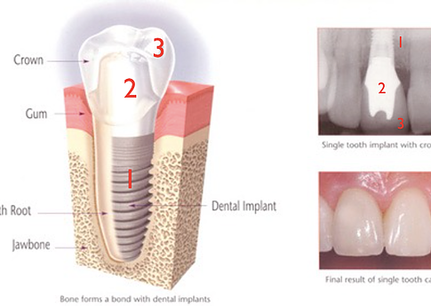 Abutment Implant Bone Grafting Making Sense Of Dental