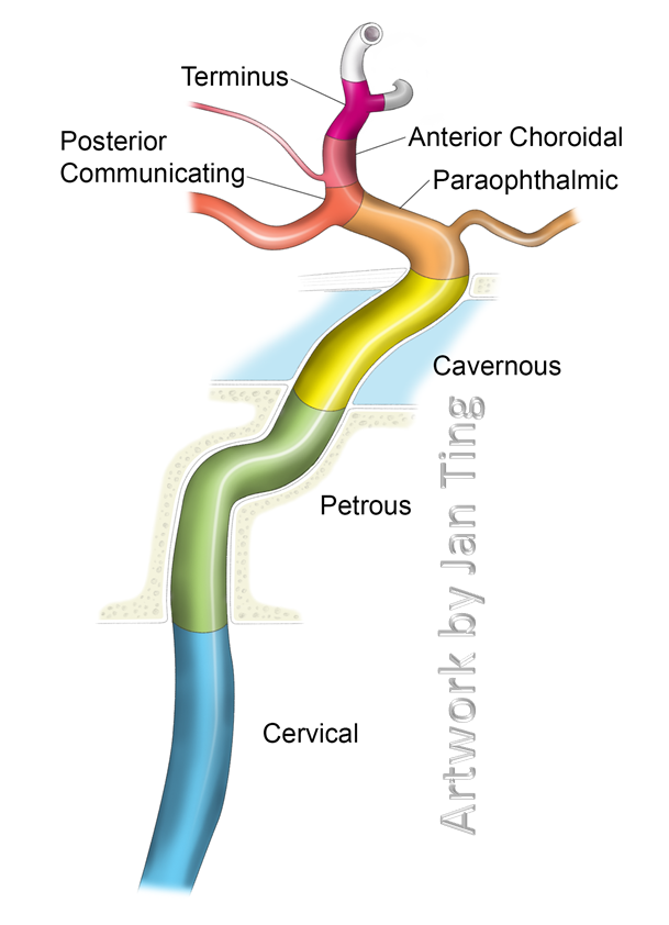Internal Carotid Artery NYU Classification | Radiography | Pinterest ...