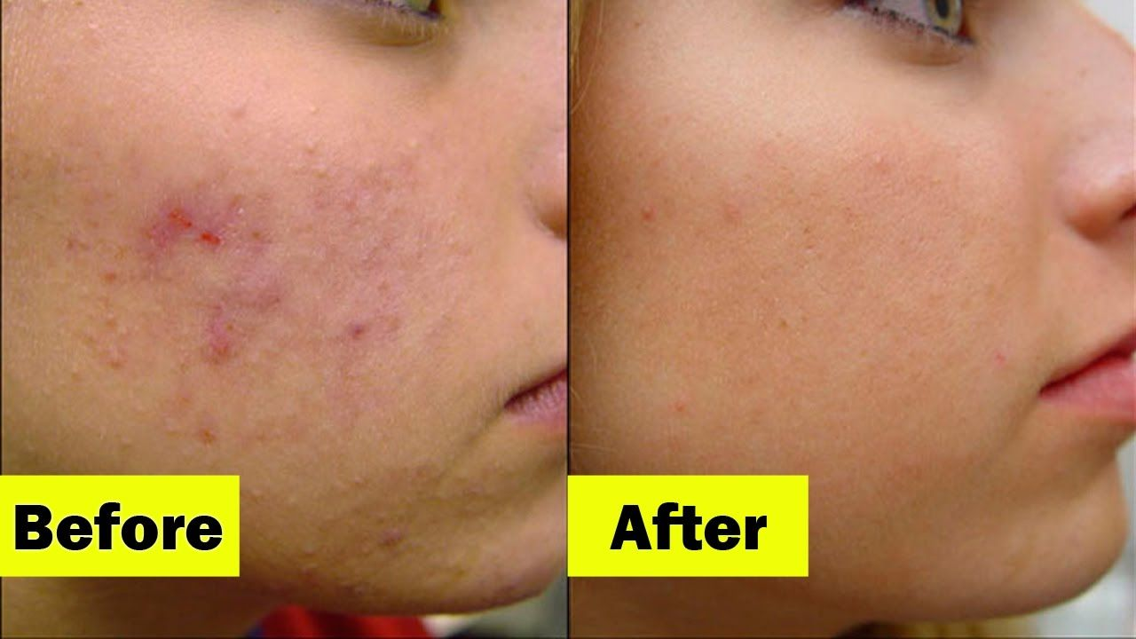 How To Get Rid Of Cystic Acne The Right Way Health Save Blog Severe Acne Best Acne Treatment Severe Acne Remedies