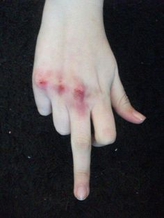 bruised knuckles - Google Search