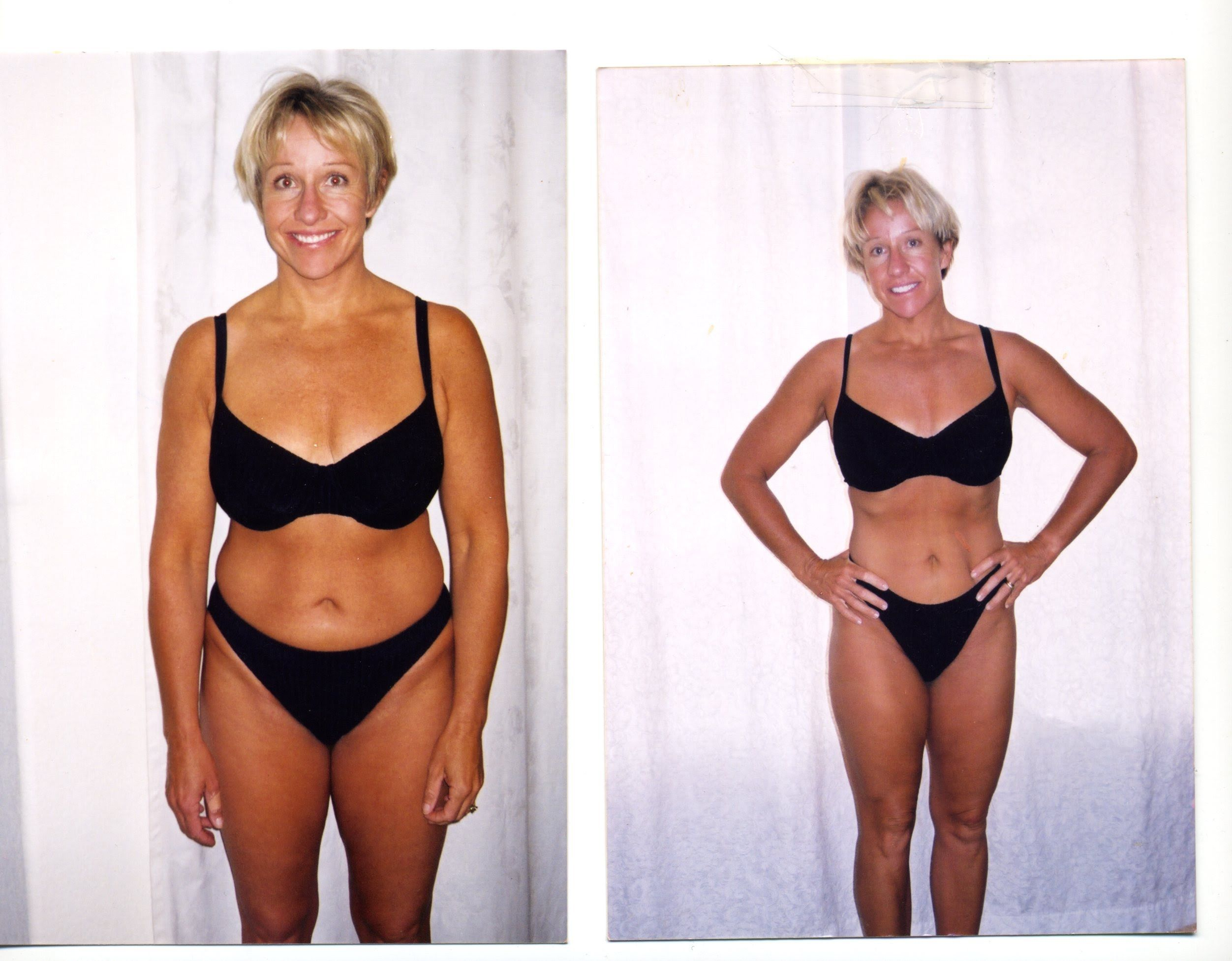 Lost Weight Does Topamax Burn Fat