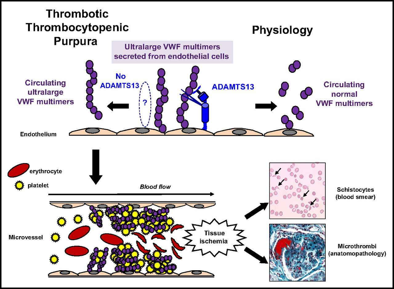 Image result for ttp Erythrocyte, Platelets, Physiology