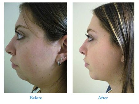 Chin Implant Before After