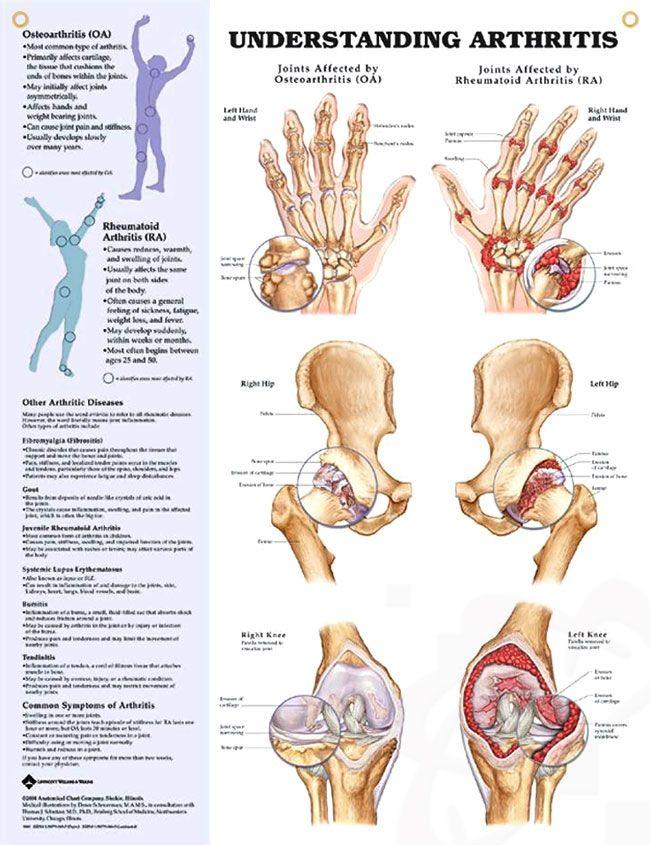 Understanding Arthritis 20x26
