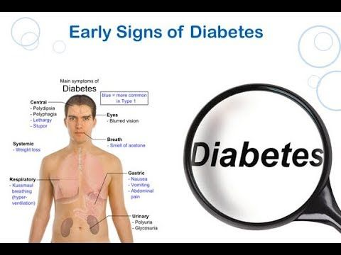 [Video] Want to know Type 2 Diabetes Symptoms and Signs? This article lists all the Symptoms and Signs of Type 2 Diabetes.