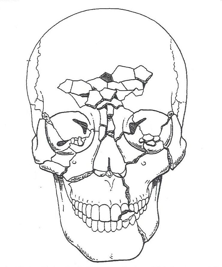 Panfacial Fractures Are Defined As Fractures Involving The Lower