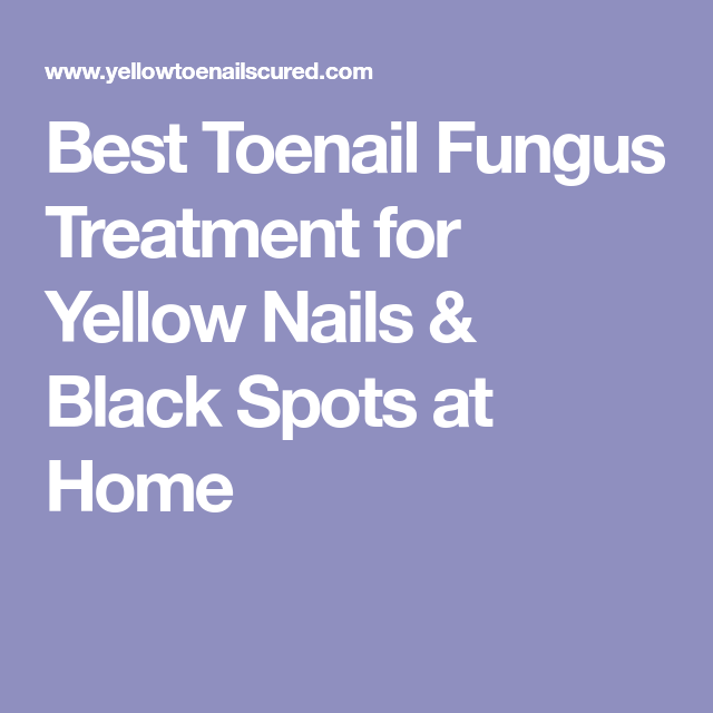 Best Toenail Fungus Treatment for Yellow Nails & Black Spots at Home ...