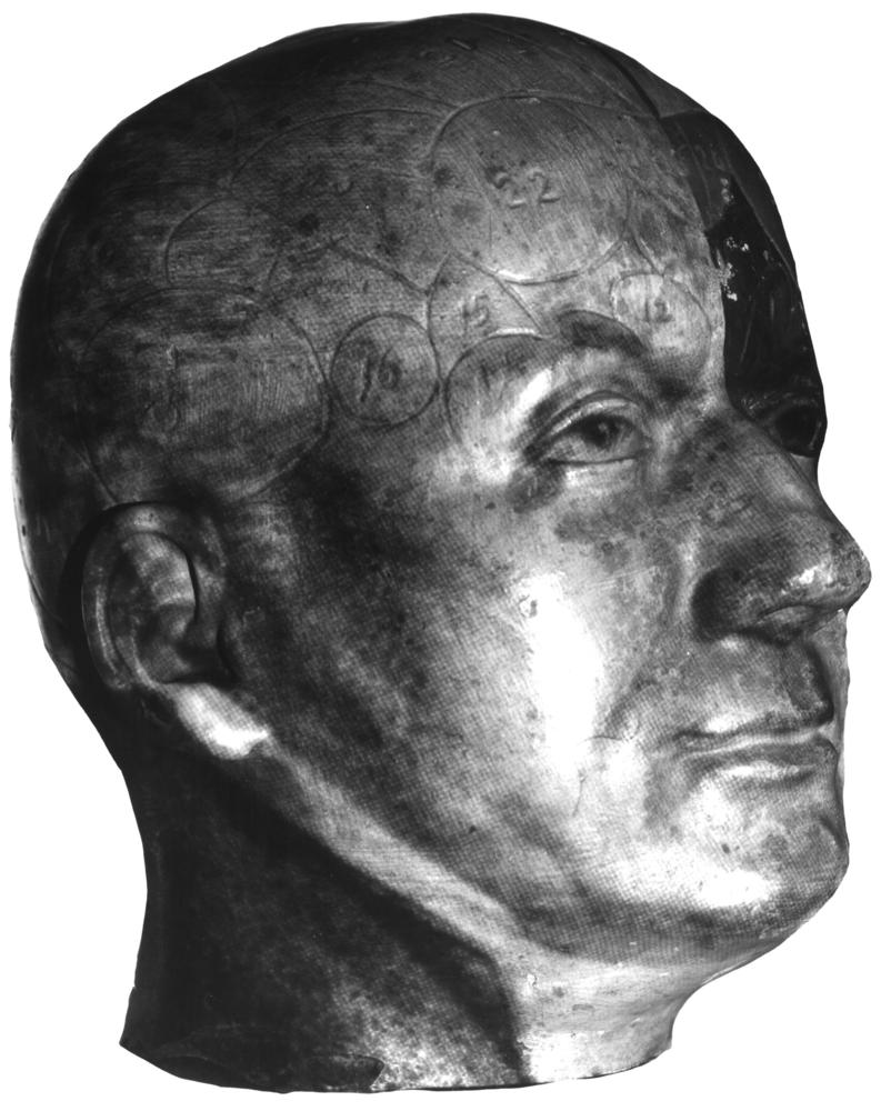 The head of Franz Joseph Gall