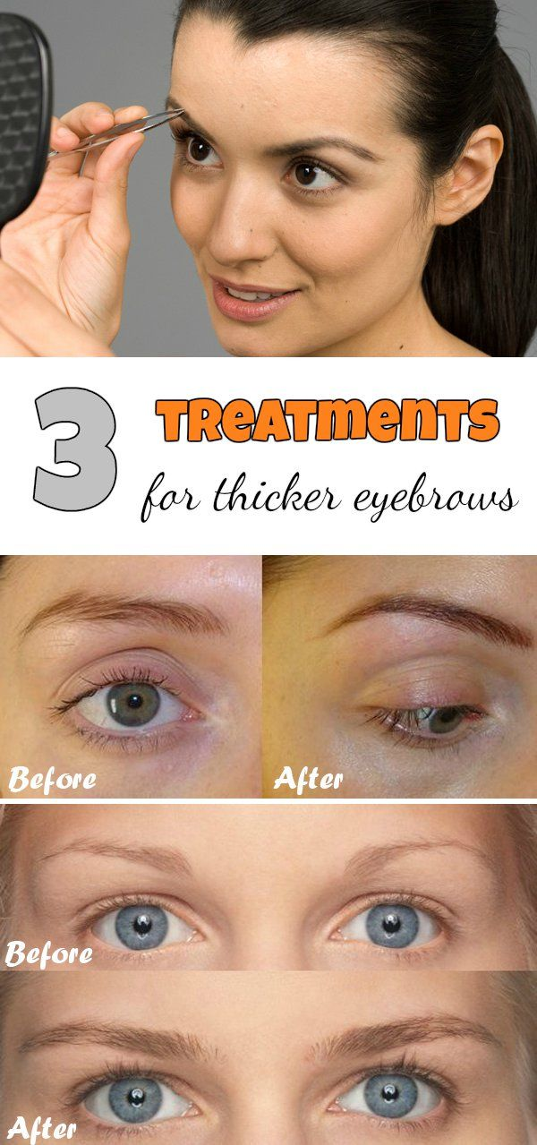 3 treatments for thicker eyebrows.