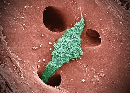 kupffer cells are cells of the immune system that patrol the liver, Human Body