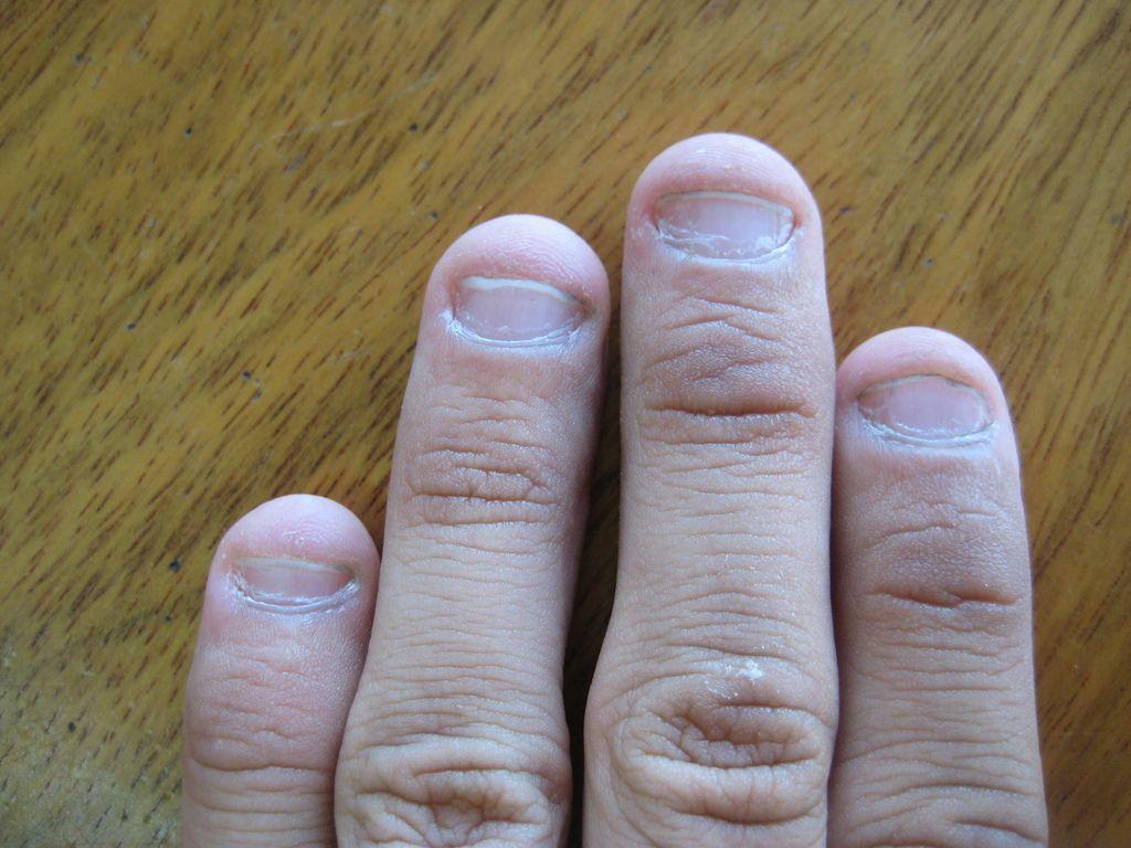 How to Stop Nail Biting   Bad Habbits   Pinterest   Nail biting and ...