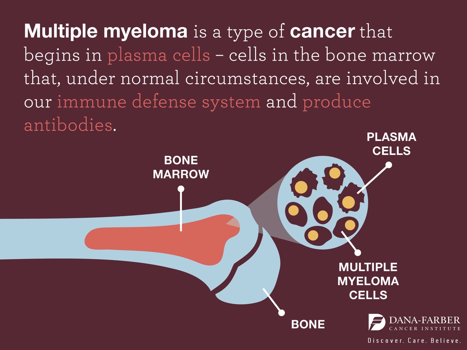 Signs and Symptoms of Multiple Myeloma – Insight