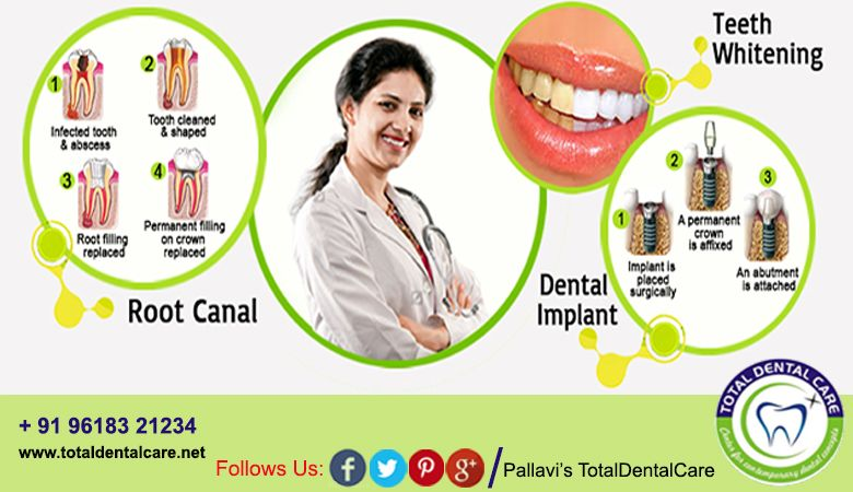 Pin on Total Dental Care