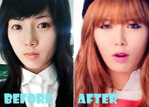 Hyuna Plastic Surgery Before and After Picture   Plastic ...