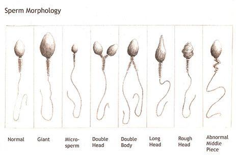 Male infertility sperm production increase