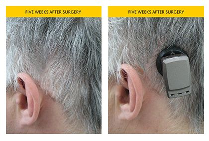 Baha patient with the magnetic Attract System 5 weeks after implant on tastefully simple order form, hearing aid order form, baha attract order form,