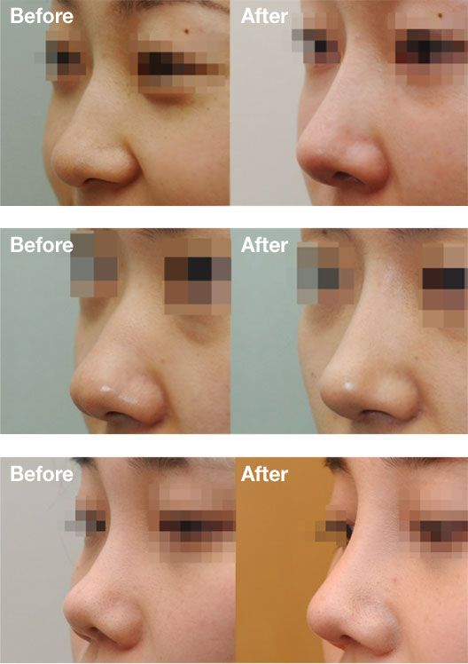 Elegant Here You Will Get Prices For Nose Job In Korea And Find The Answer For How  Much Do Nose Jobs Cost On Average In Korea. See The Cost Before You Travel  For ...