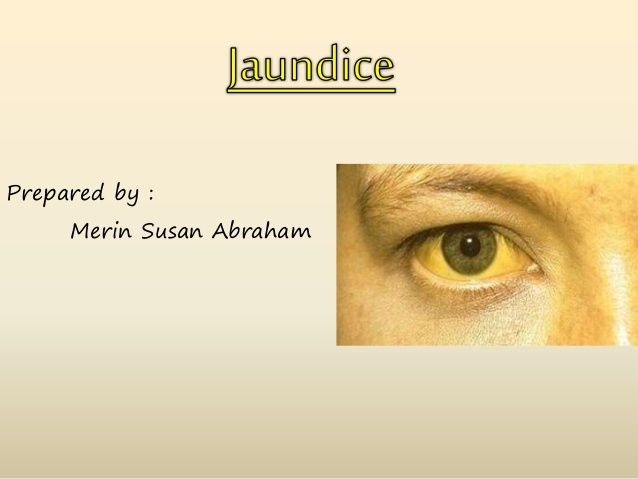 Prepared by :  Merin Susan Abraham