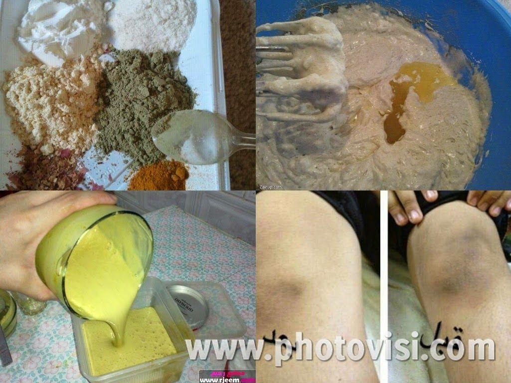 خلطة بياض الثلج لتبيض الوجه و الجسم و المناطق الحساسة بسرعة رهيبة ب 3 ايام فقط Natural Skin Care Diy Beauty Care Diy Skin Care