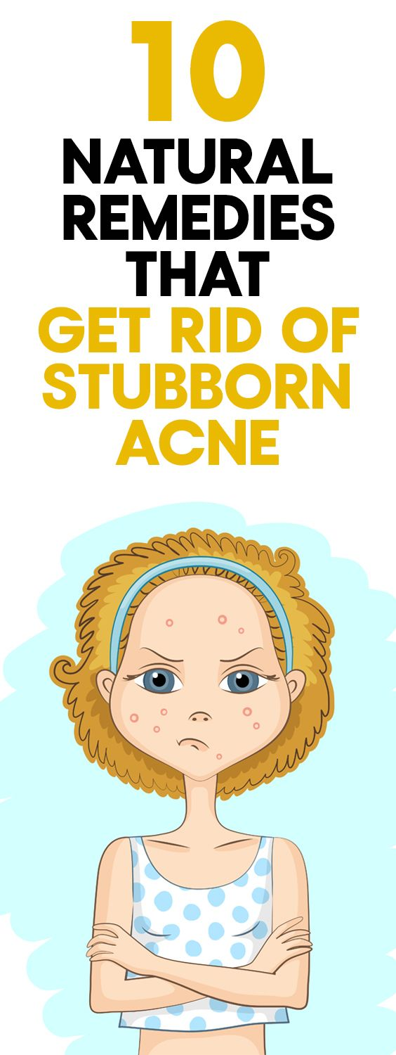 How to get rid of stubborn acne naturally