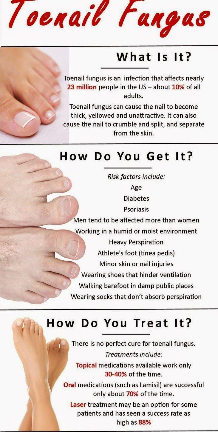 Toenail fungus, also called onychomycosis,is a relatively common ...