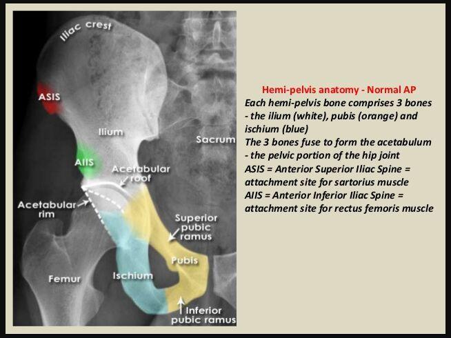 Iliac crest X-ray - www.anatomynote.com   Anatomy note world ...