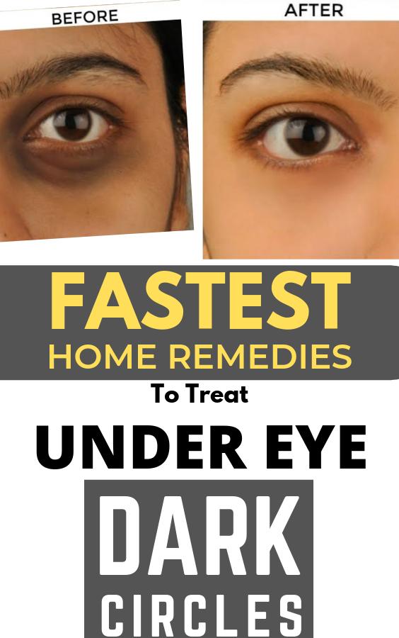 Fastest Home Remedies To Get Rid Of Under Eye Dark Circles Skin Skincare Darkcircles Homeremedies Beautytips Skin Eye Care Dark Circles