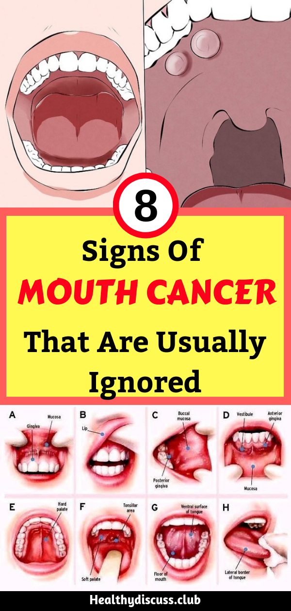 Healthy Floor Of Mouth Pictures