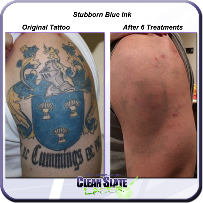 Stubborn Blue Ink? Clean Slate Laser Tattoo Removal