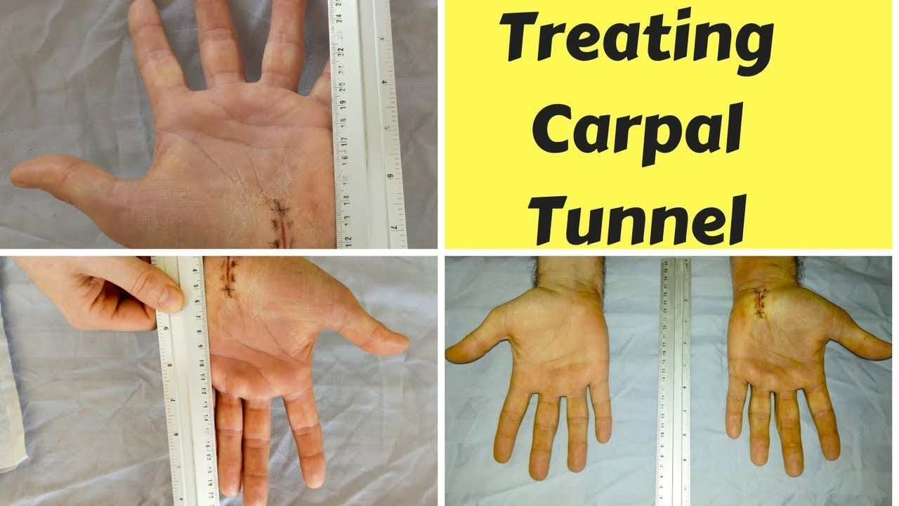 Exercises for treating carpal tunnel carpal tunnel