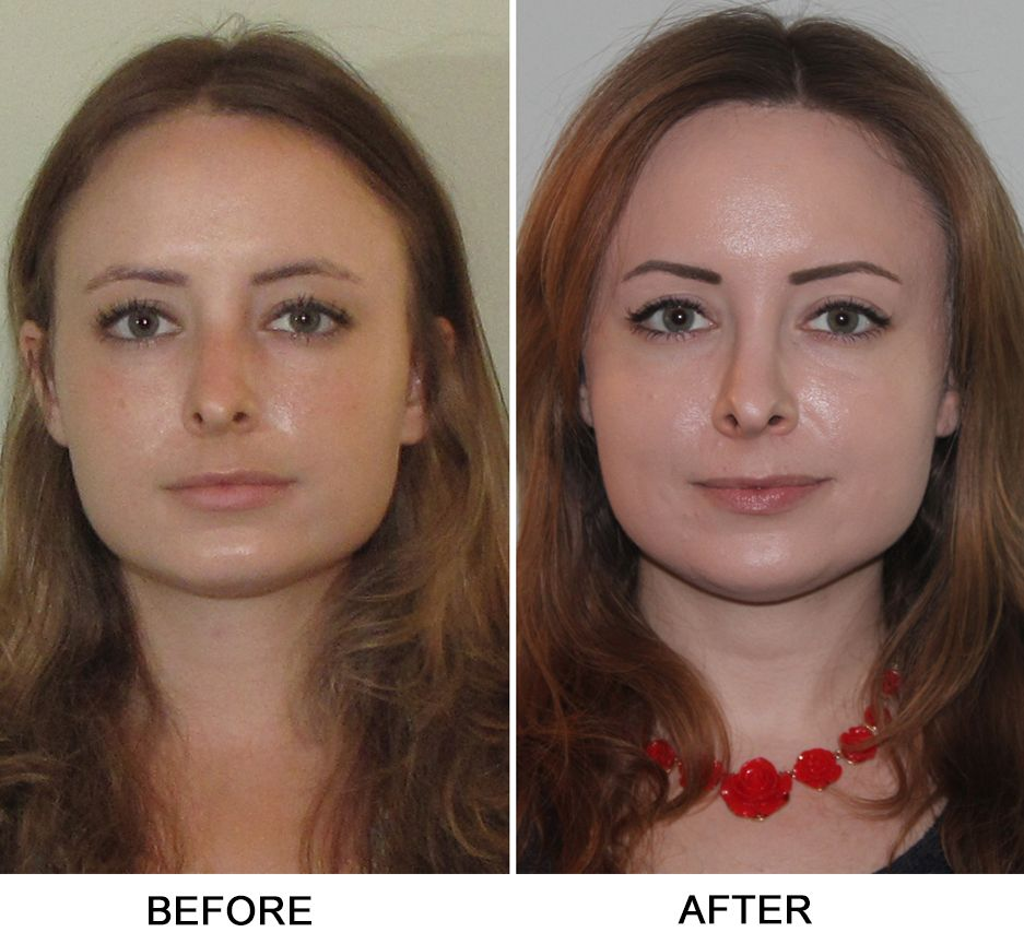 Turbinate Reduction, Septoplasty | Broken nose surgery ...