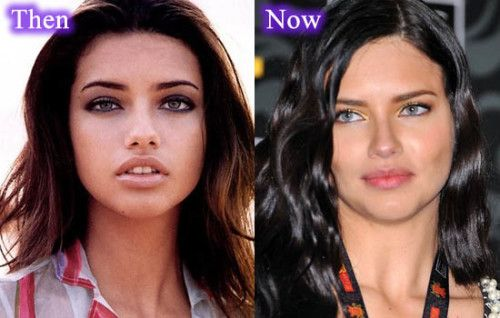 Adriana Lima Plastic Surgery 500x318 And Breast Implant Before After Photo