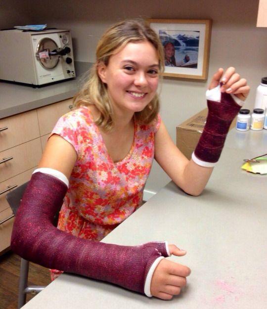 Girl Purple Long Arm Thumb Spica + Short Arm Cast LATS