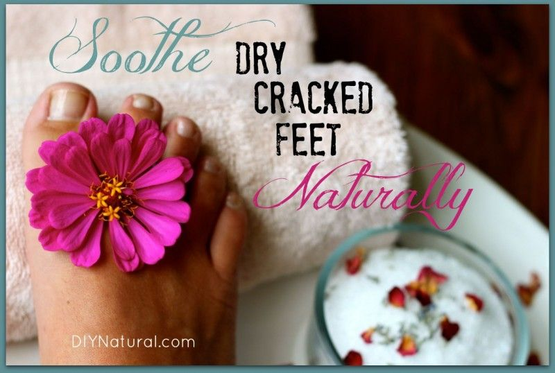 dry cracked feet soothed