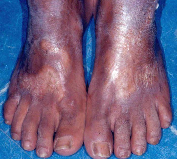 Esclerodermia Enfermedad No Tan Rara Dermascrerosis