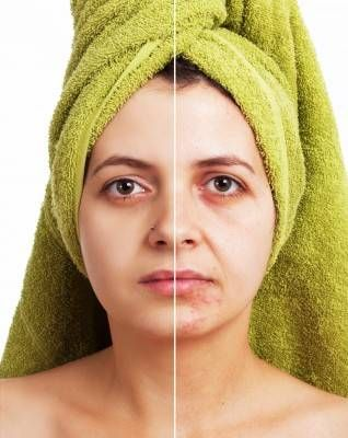 Acne treatment for mature skin