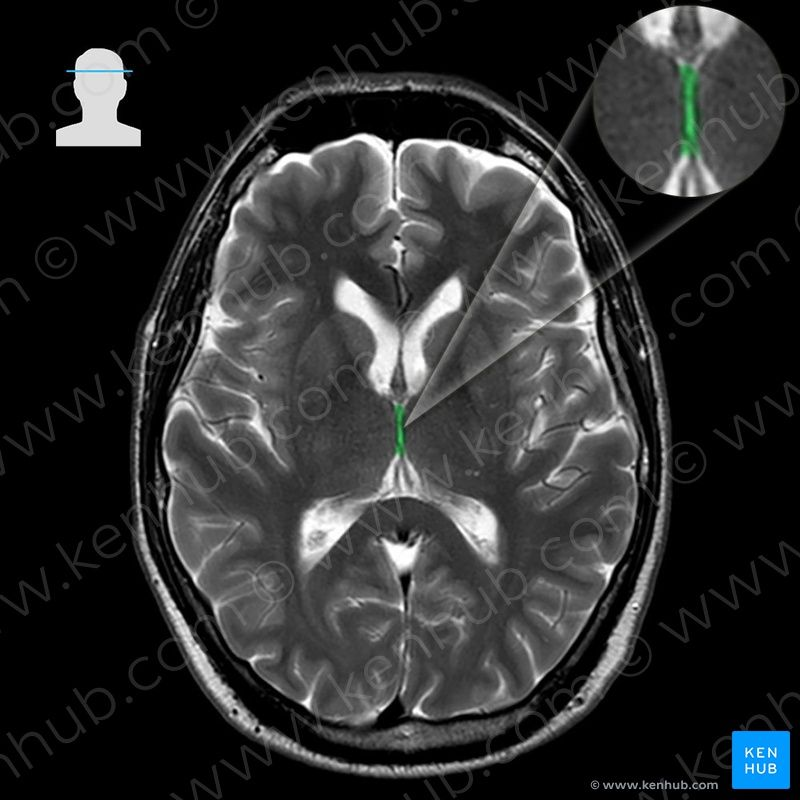 Third ventricle ventriculus tertius image brains pinterest third ventricle ventriculus tertius image fandeluxe Choice Image