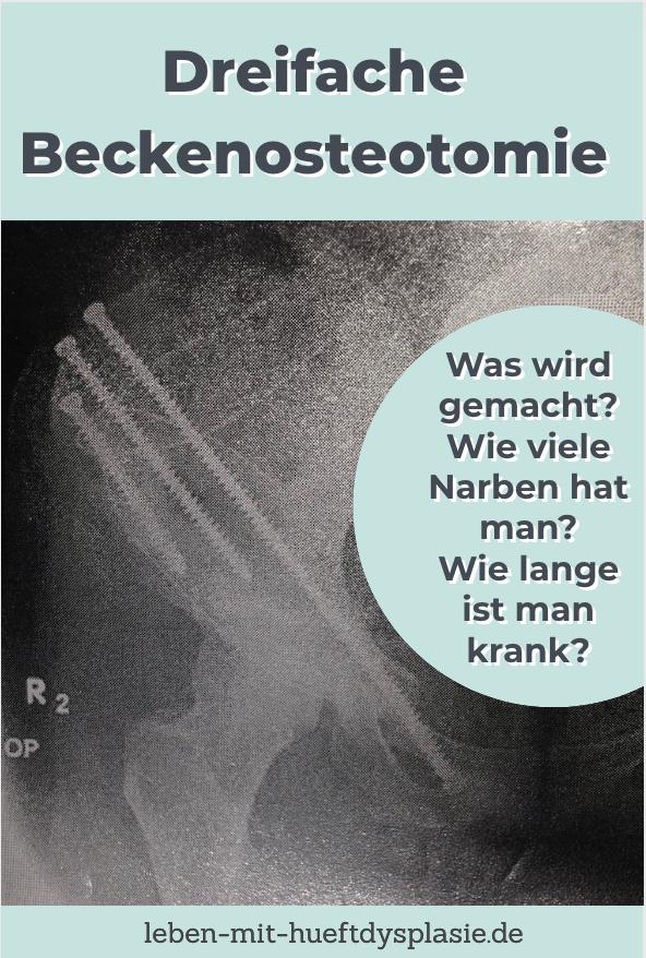Arthrose Schmerzen Wie Lange Krankgeschrieben - jayden ana