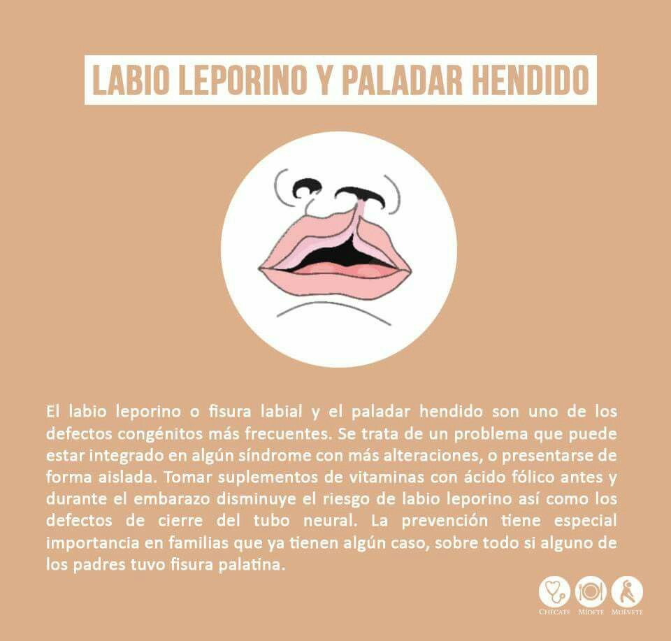 Labio leporino y paladar hendido. | Dental health | Pinterest ...